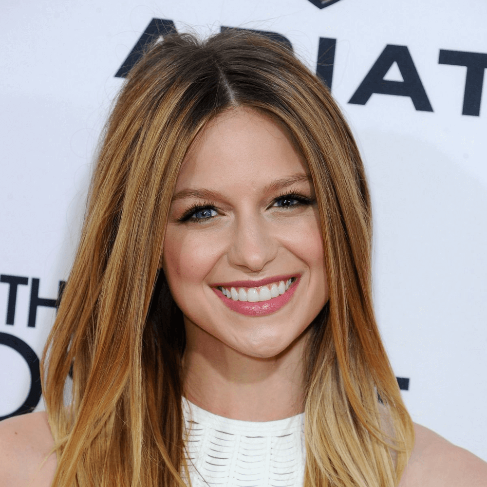 Melissa Benoist Biography • Actress • Profile